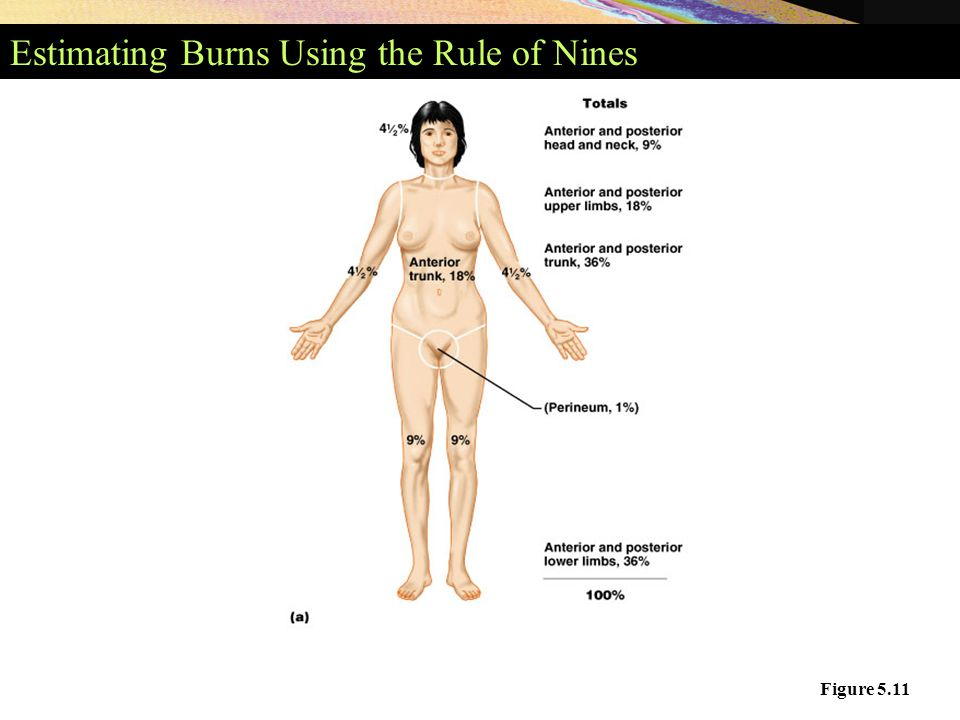 Estimating Burns Using the Rule of Nines Figure 5.11
