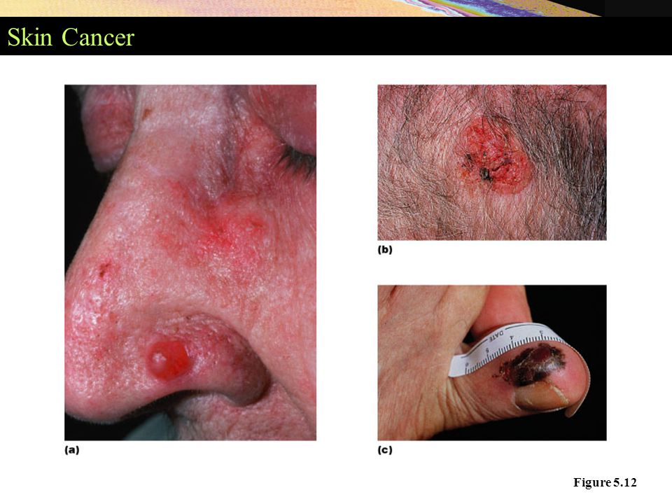 Skin Cancer Figure 5.12