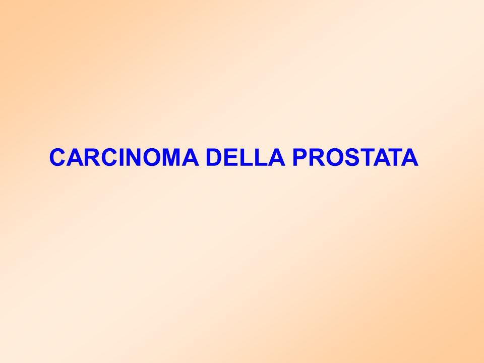cancro della prostata ist milano