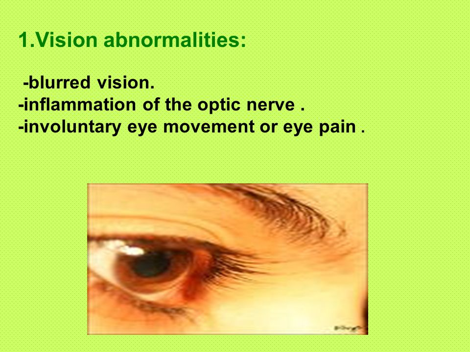 1.Vision abnormalities: -blurred vision. -inflammation of the optic nerve.