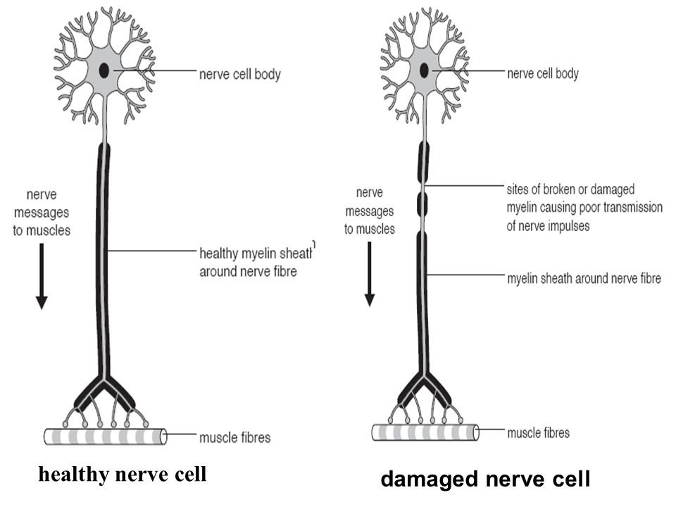 healthy nerve cell damaged nerve cell