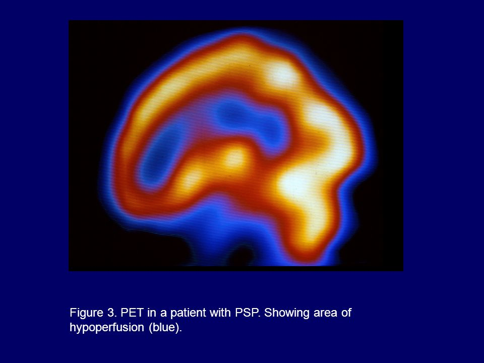 Figure 3. PET in a patient with PSP. Showing area of hypoperfusion (blue).