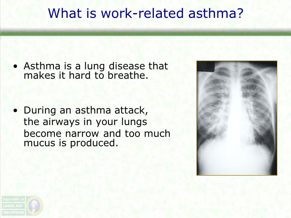 What is work-related asthma. Asthma is a lung disease that makes it hard to breathe.