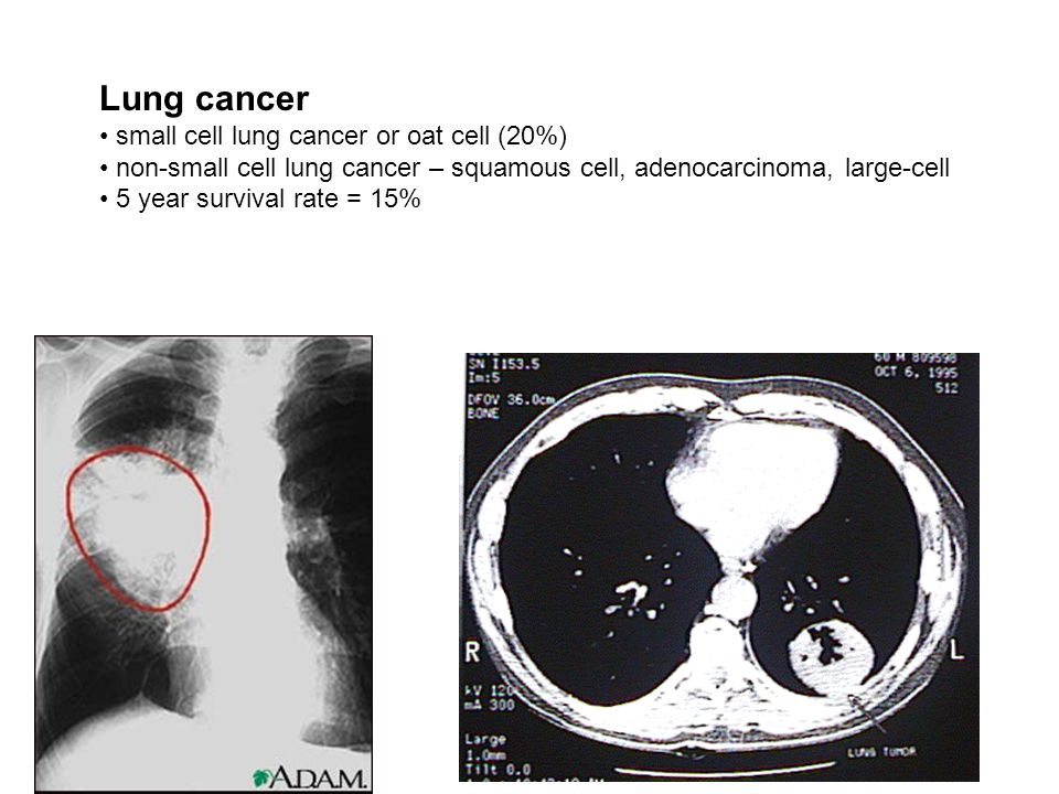 Lung cancer small cell lung cancer or oat cell (20%) non-small cell lung cancer – squamous cell, adenocarcinoma, large-cell 5 year survival rate = 15%