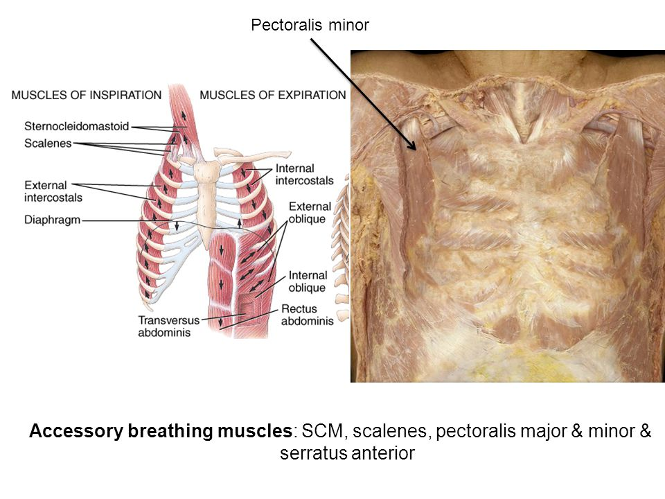 Accessory breathing muscles: SCM, scalenes, pectoralis major & minor & serratus anterior Pectoralis minor