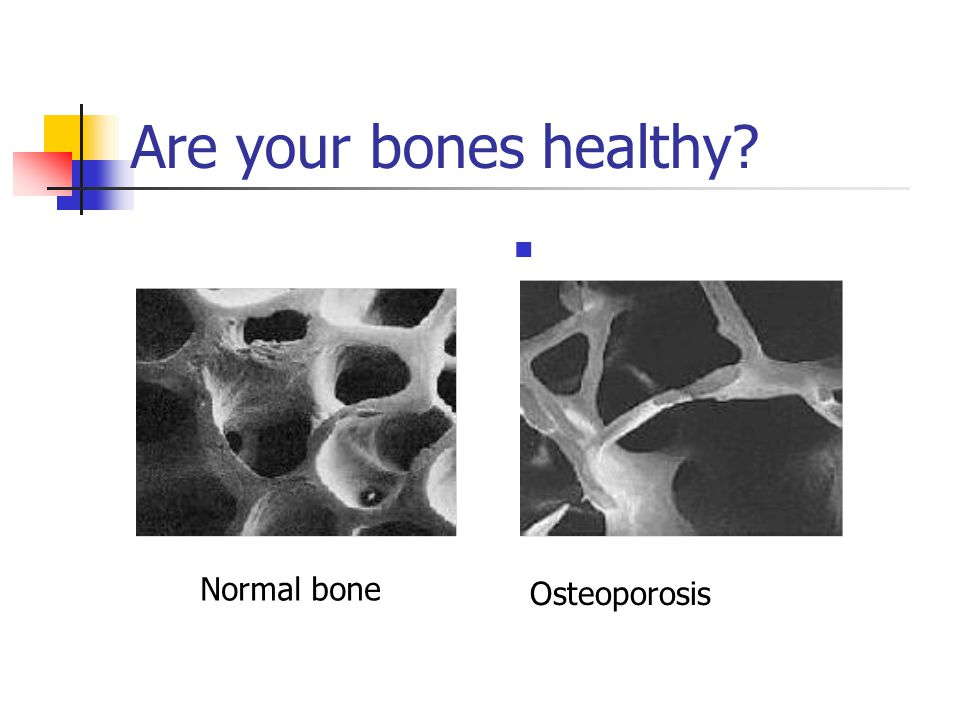 Are your bones healthy Normal bone Osteoporosis