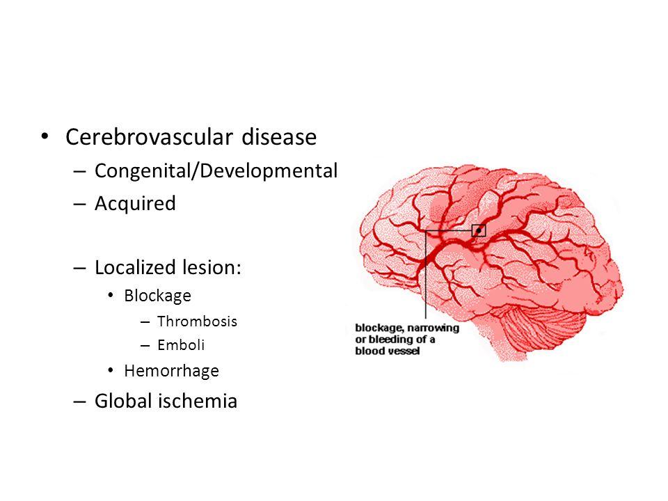 Cerebro-Vascular Disease Dr. Raid Jastania. Cerebrovascular disease ...
