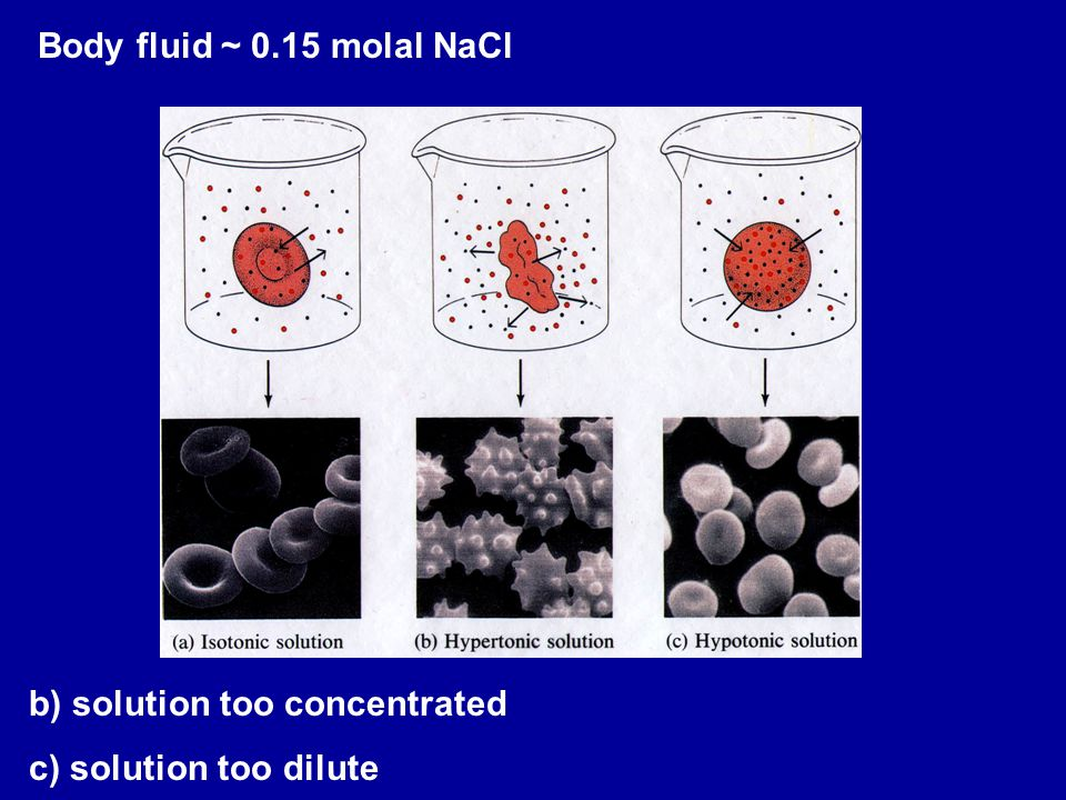 Body fluid ~ 0.15 molal NaCl b) solution too concentrated c) solution too dilute