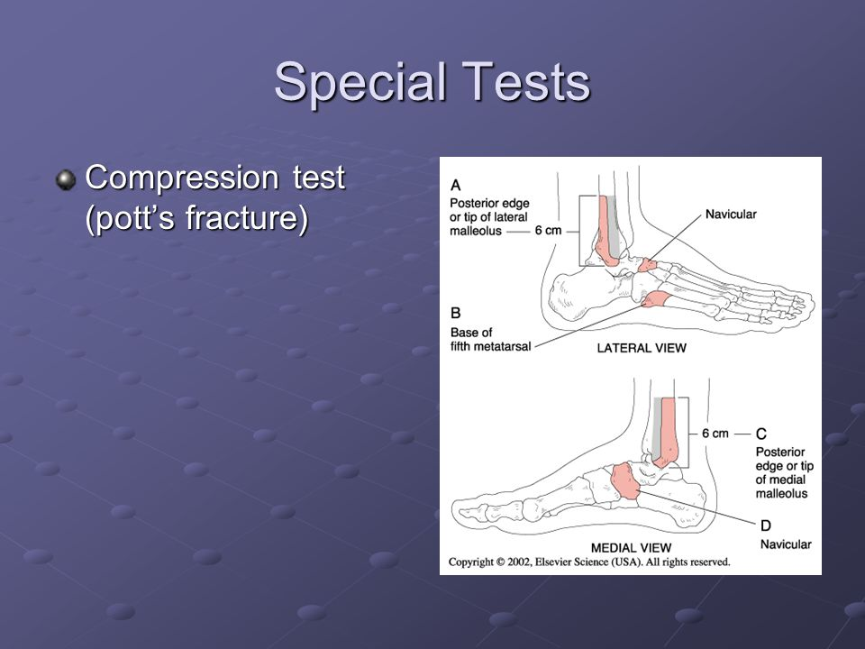 Special Tests Compression test (pott's fracture)