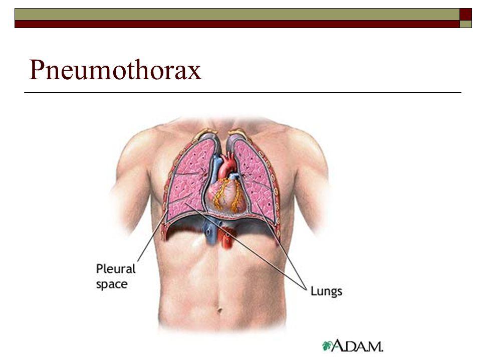 SPPA 2050 Speech Anatomy & Physiology Respiration. - ppt download