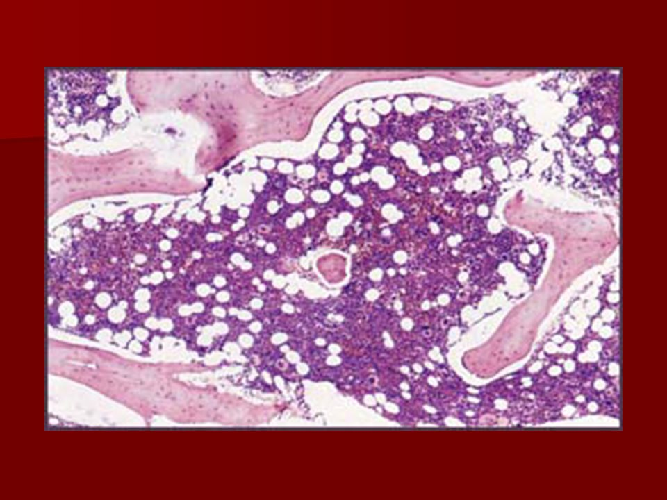 Clinical Features Hematological findings: (Cont…) Hematological findings: (Cont…) Bone Marrow: –Hypocellular: <50% of normal cellularity Trephine biopsy is the most important for diagnosis.