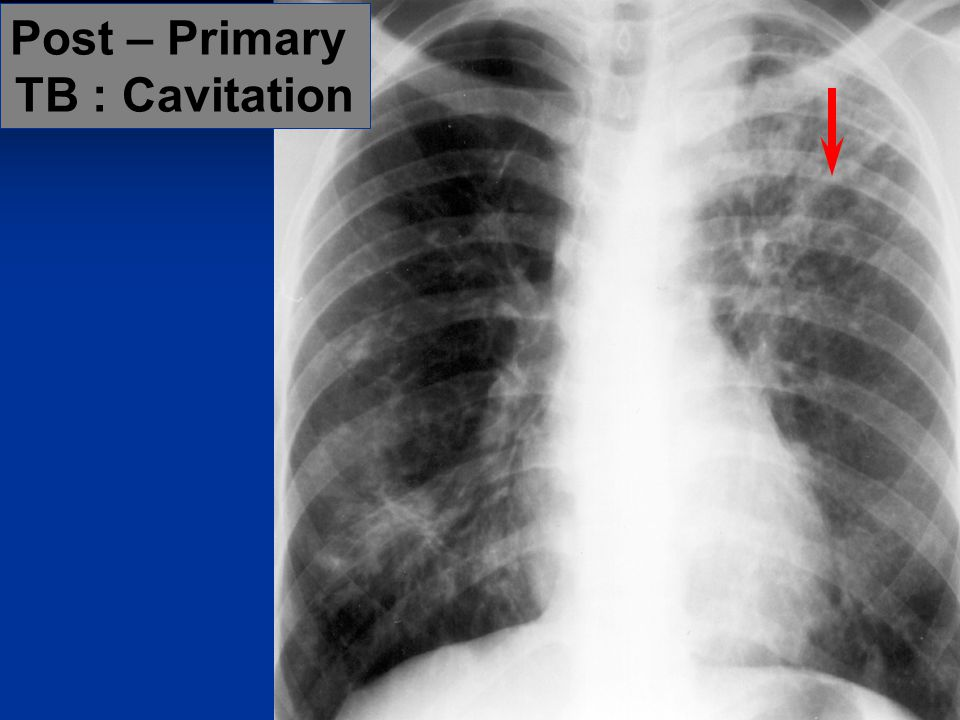Post – Primary TB : Cavitation