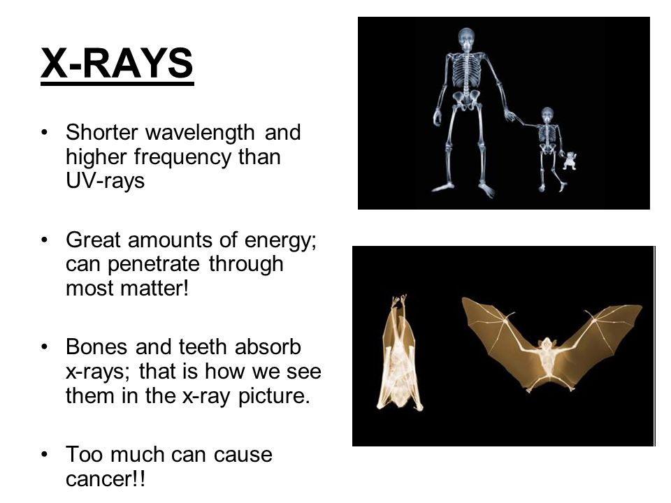 X-RAYS Shorter wavelength and higher frequency than UV-rays Great amounts of energy; can penetrate through most matter.