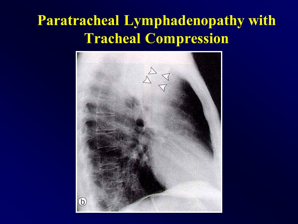 Paratracheal Lymphadenopathy with Tracheal Compression