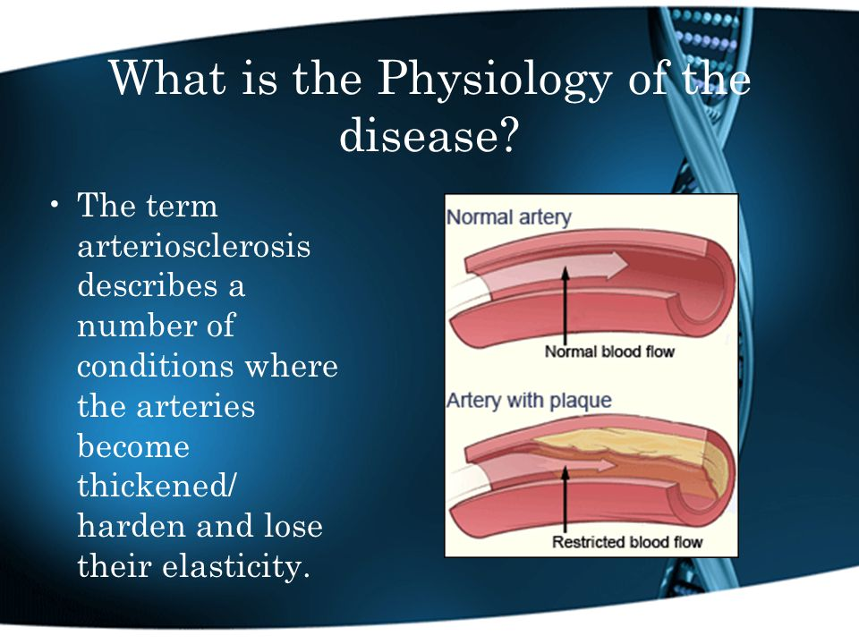 What is the Physiology of the disease.