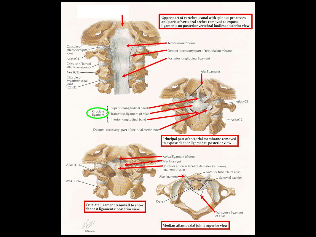 Surgical Approach: Fixation at C ppt video online download