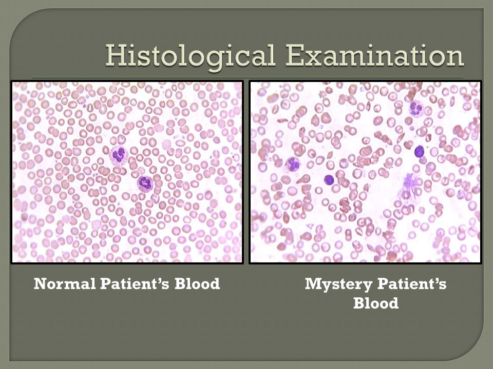 Normal Patient's BloodMystery Patient's Blood