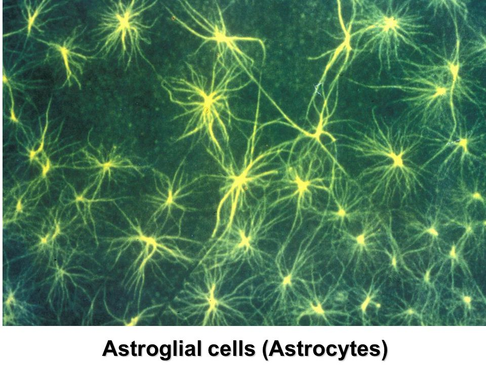 Astroglial cells (Astrocytes)
