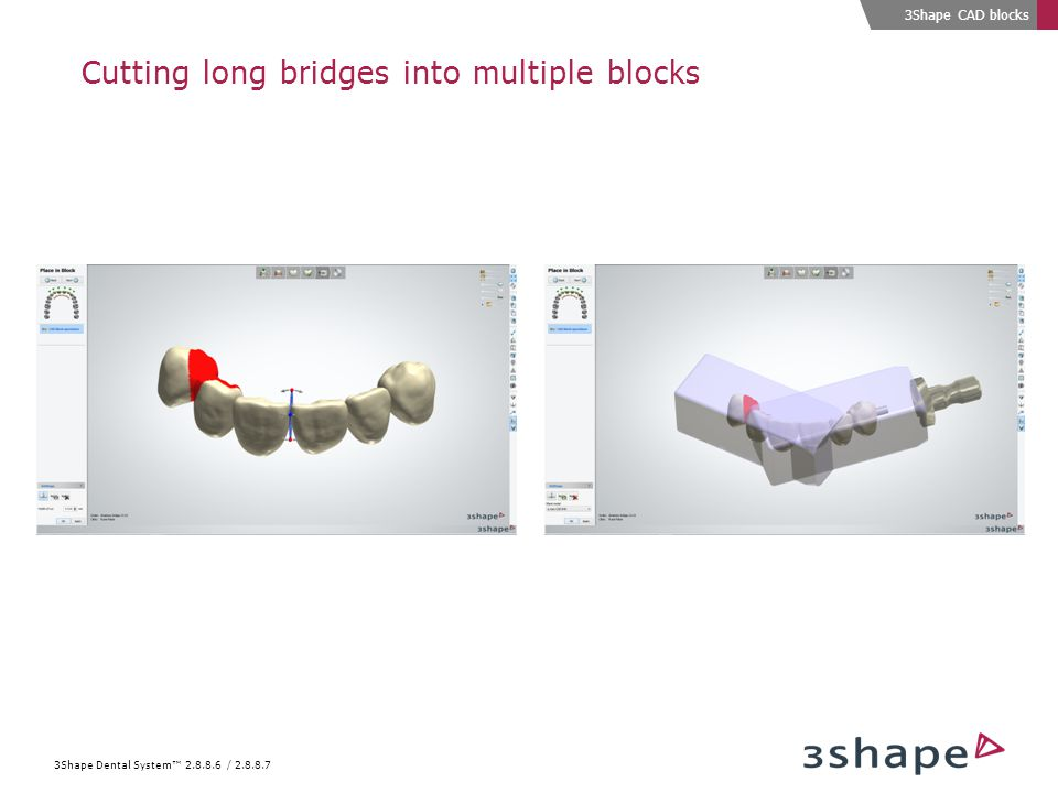 The future for digital crowns CAD block support - 3Shape Dental