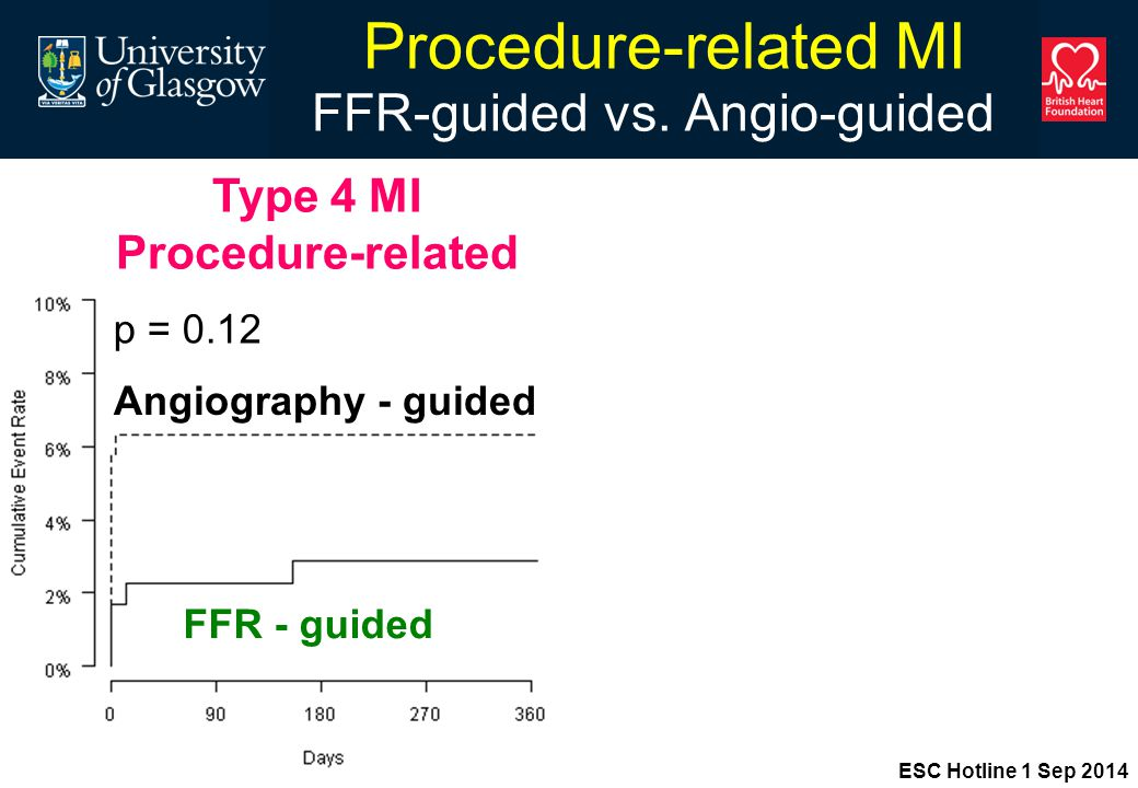 Procedure-related MI FFR-guided vs.