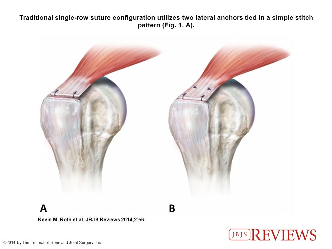 Arthroscopic Single-Row Versus Double-Row Repair for Full-Thickness ...