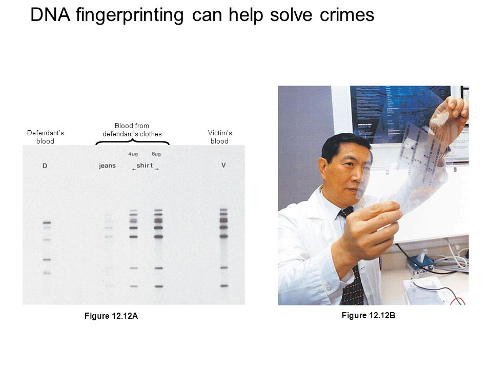 DNA fingerprinting can help solve crimes Defendant's blood Blood from defendant's clothes Victim's blood Figure 12.12A Figure 12.12B