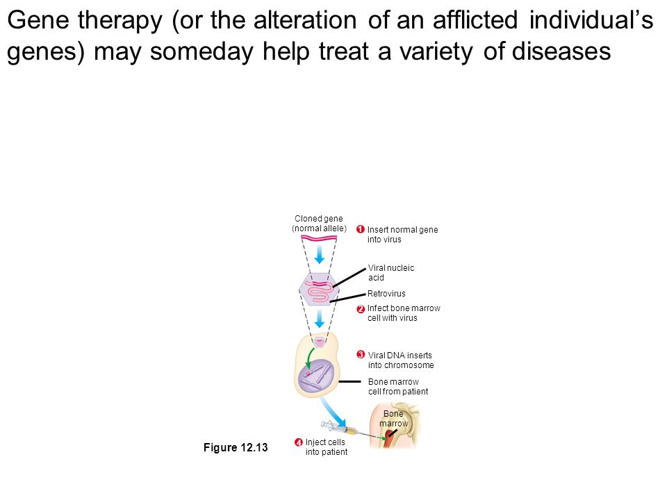 Gene therapy (or the alteration of an afflicted individual's genes) may someday help treat a variety of diseases Cloned gene (normal allele) 1 Insert normal gene into virus 2 Infect bone marrow cell with virus 3 Viral DNA inserts into chromosome 4 Inject cells into patient Bone marrow Bone marrow cell from patient Viral nucleic acid Retrovirus Figure 12.13