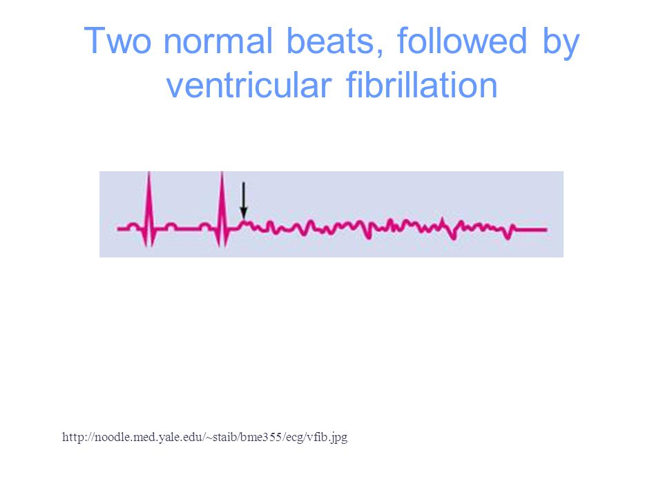 Two normal beats, followed by ventricular fibrillation