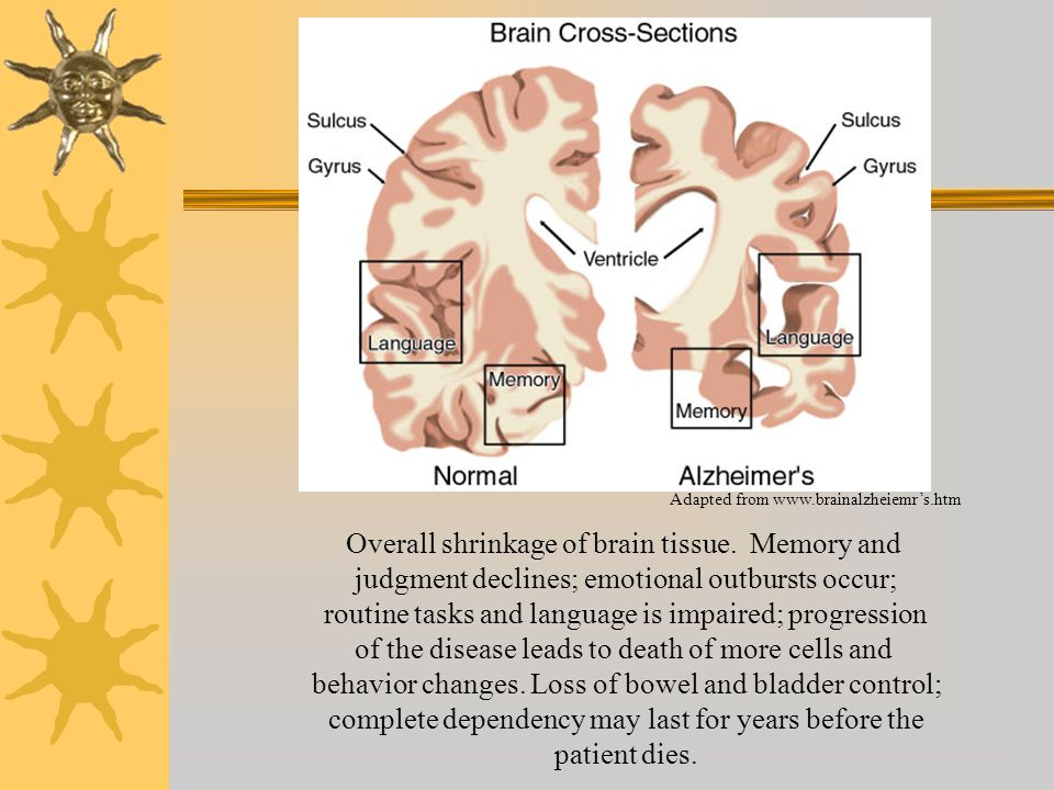 an overview of the characteristics and symptoms of alzheimers disease Inservice summary alzheimer's disease is a chronic, incurable, disease that causes devastating damage to the brain and nervous system the number of people with alzheimer's disease is growing.