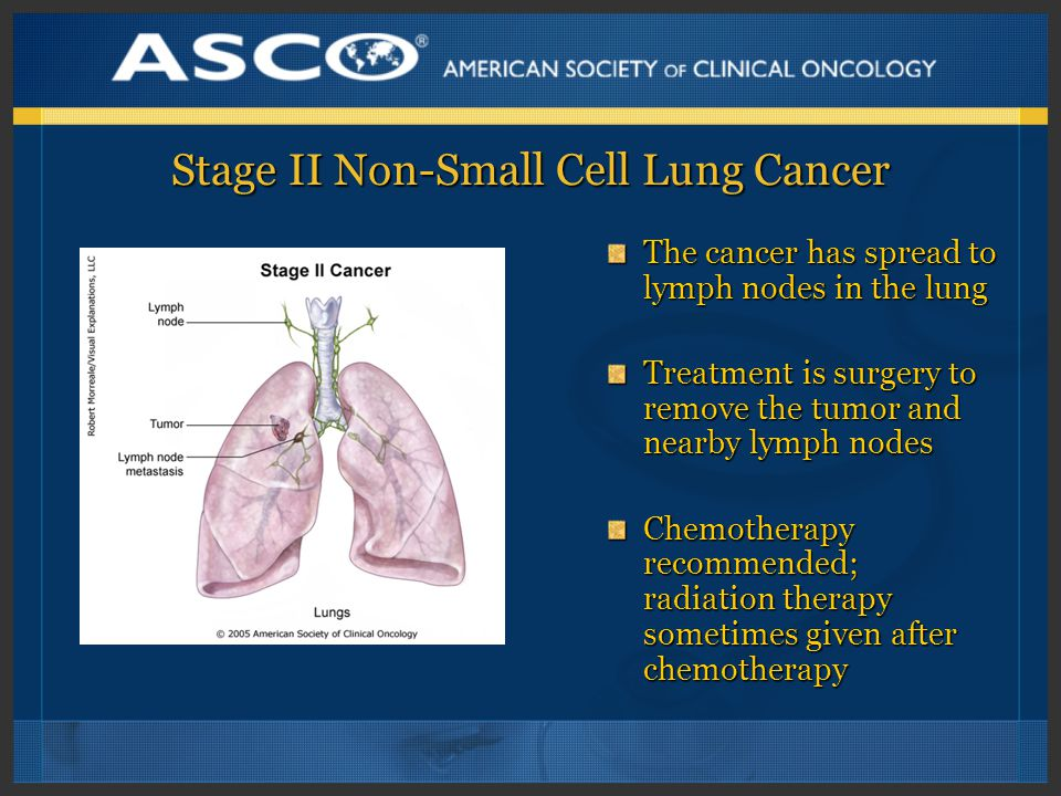 Stage II Non-Small Cell Lung Cancer The cancer has spread to lymph nodes in the lung Treatment is surgery to remove the tumor and nearby lymph nodes Chemotherapy recommended; radiation therapy sometimes given after chemotherapy
