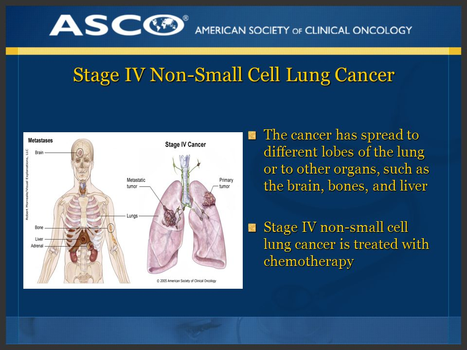 Stage IV Non-Small Cell Lung Cancer The cancer has spread to different lobes of the lung or to other organs, such as the brain, bones, and liver Stage IV non-small cell lung cancer is treated with chemotherapy