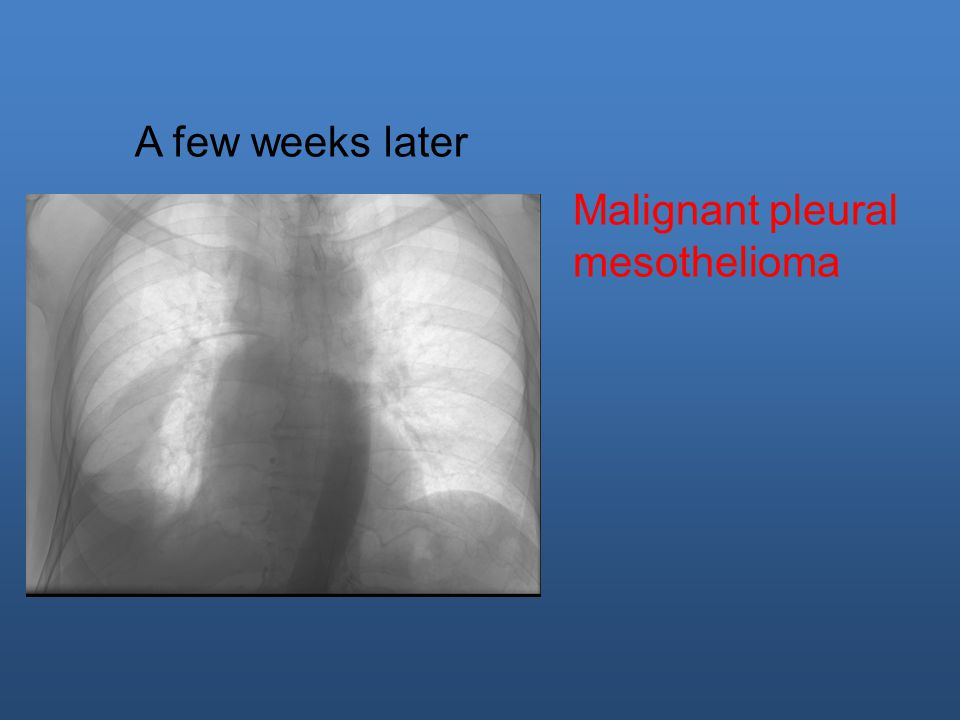 A few weeks later Malignant pleural mesothelioma