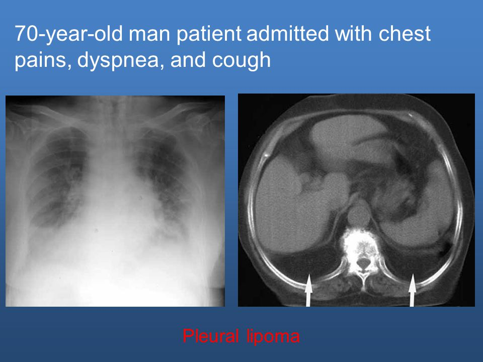 70-year-old man patient admitted with chest pains, dyspnea, and cough Pleural lipoma