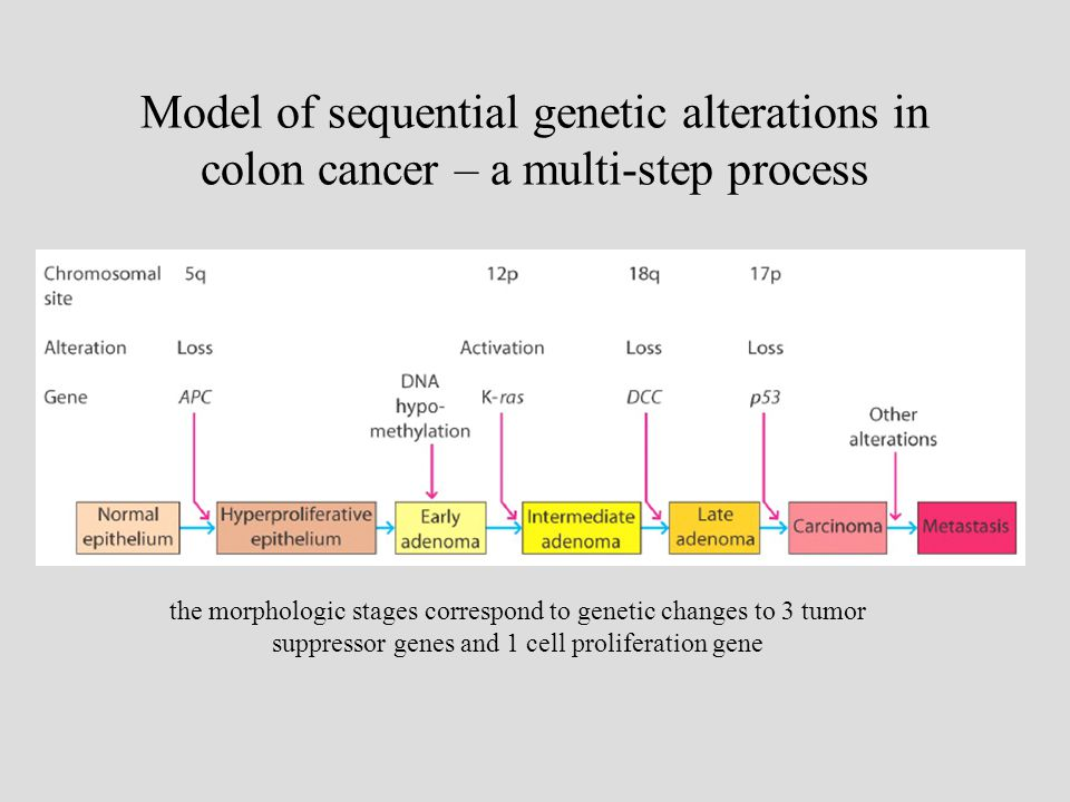 Model of sequential genetic alterations in colon cancer – a multi-step process the morphologic stages correspond to genetic changes to 3 tumor suppressor genes and 1 cell proliferation gene