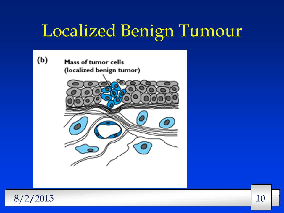 10 8/2/2015 Localized Benign Tumour