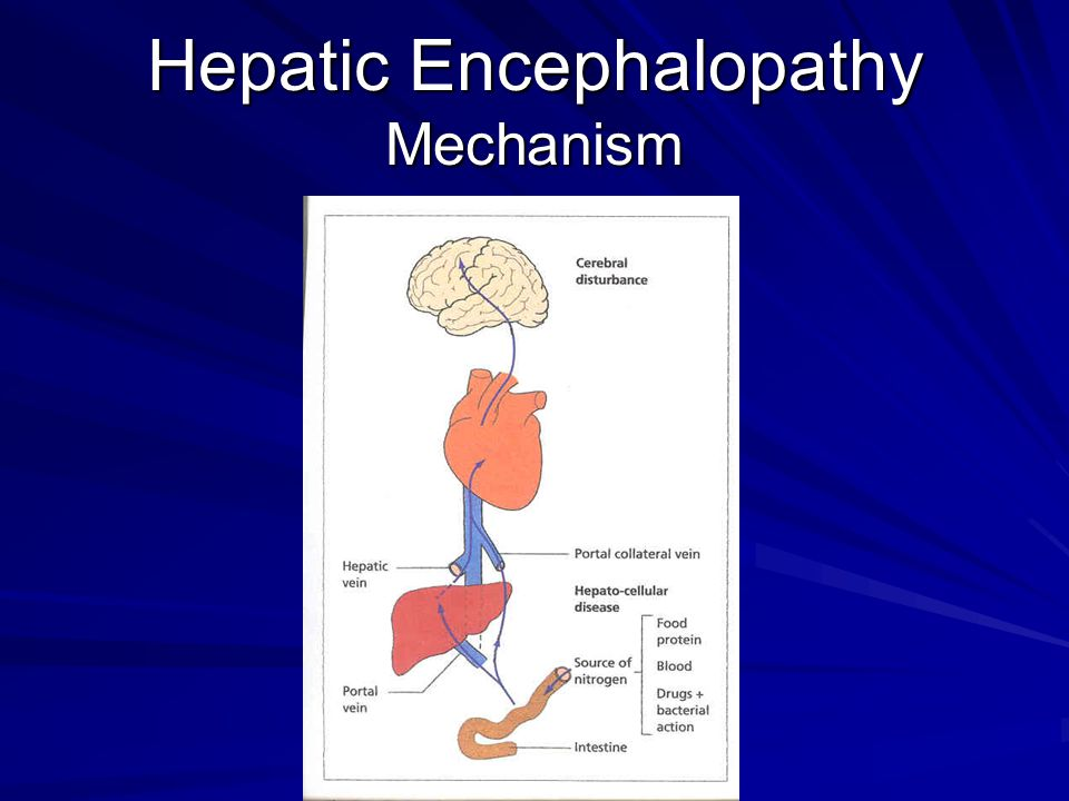 Hepatic Encephalopathy Mechanism