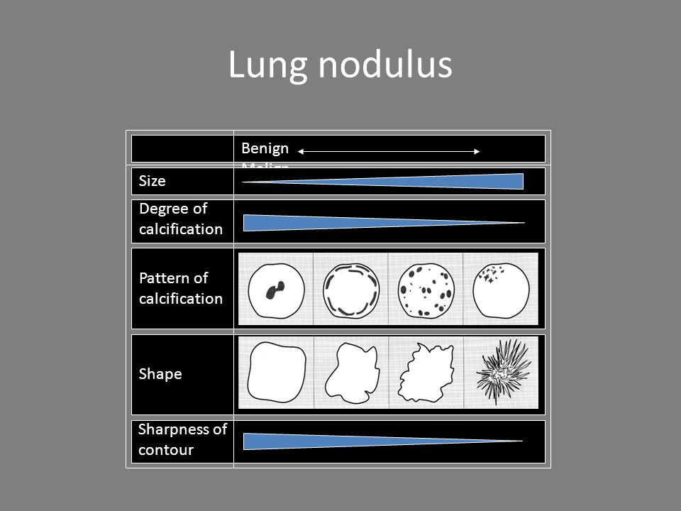 Lung nodulus Benign Malign Pattern of calcification Shape Sharpness of contour Degree of calcification Size