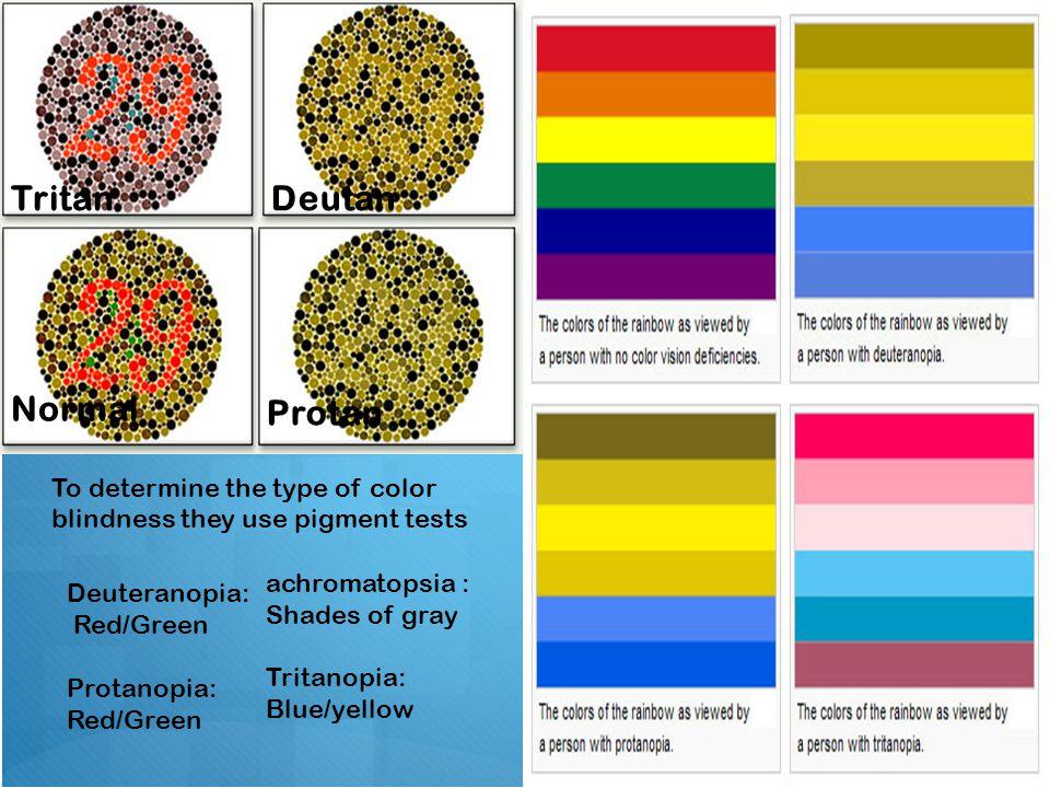 Deutan Color Blindness Blinds