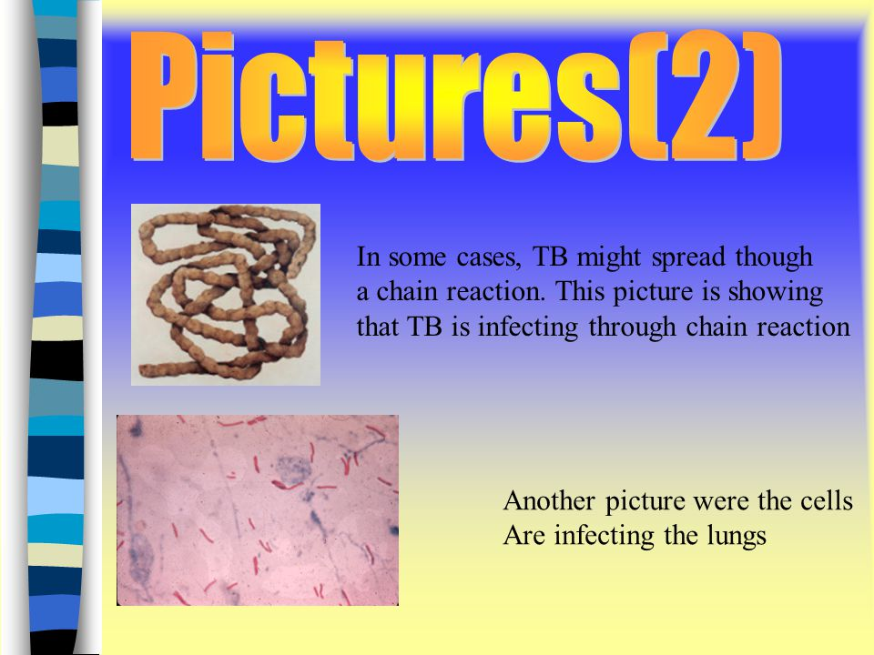 l In some cases, TB might spread though a chain reaction.