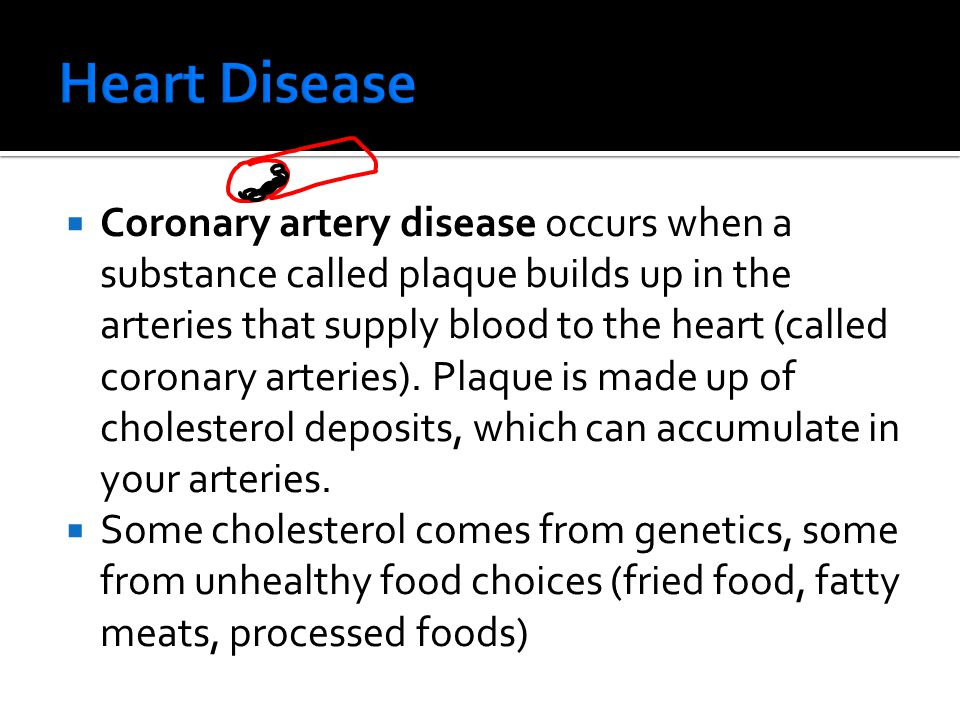  Coronary artery disease occurs when a substance called plaque builds up in the arteries that supply blood to the heart (called coronary arteries).