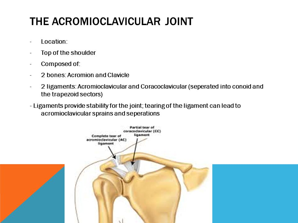 Acromioclavicular Joint Injuries Shoulder Separation By Islay Duff