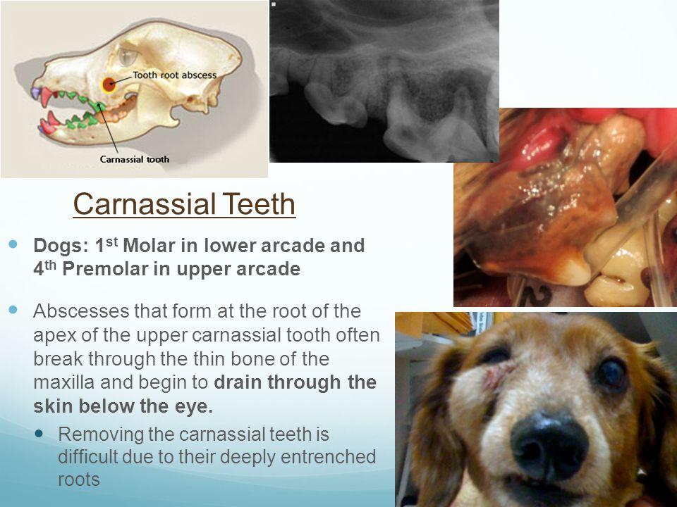 molar tooth abscess - 960×720