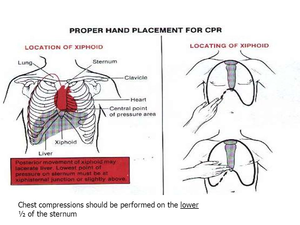 Chest compressions should be performed on the lower ½ of the sternum