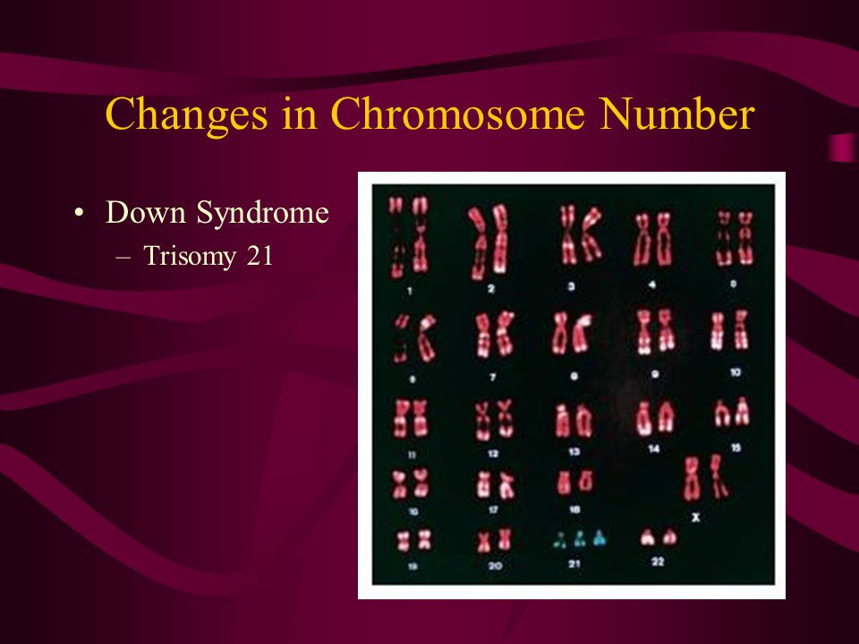 Changes in Chromosome Number Down Syndrome –Trisomy 21