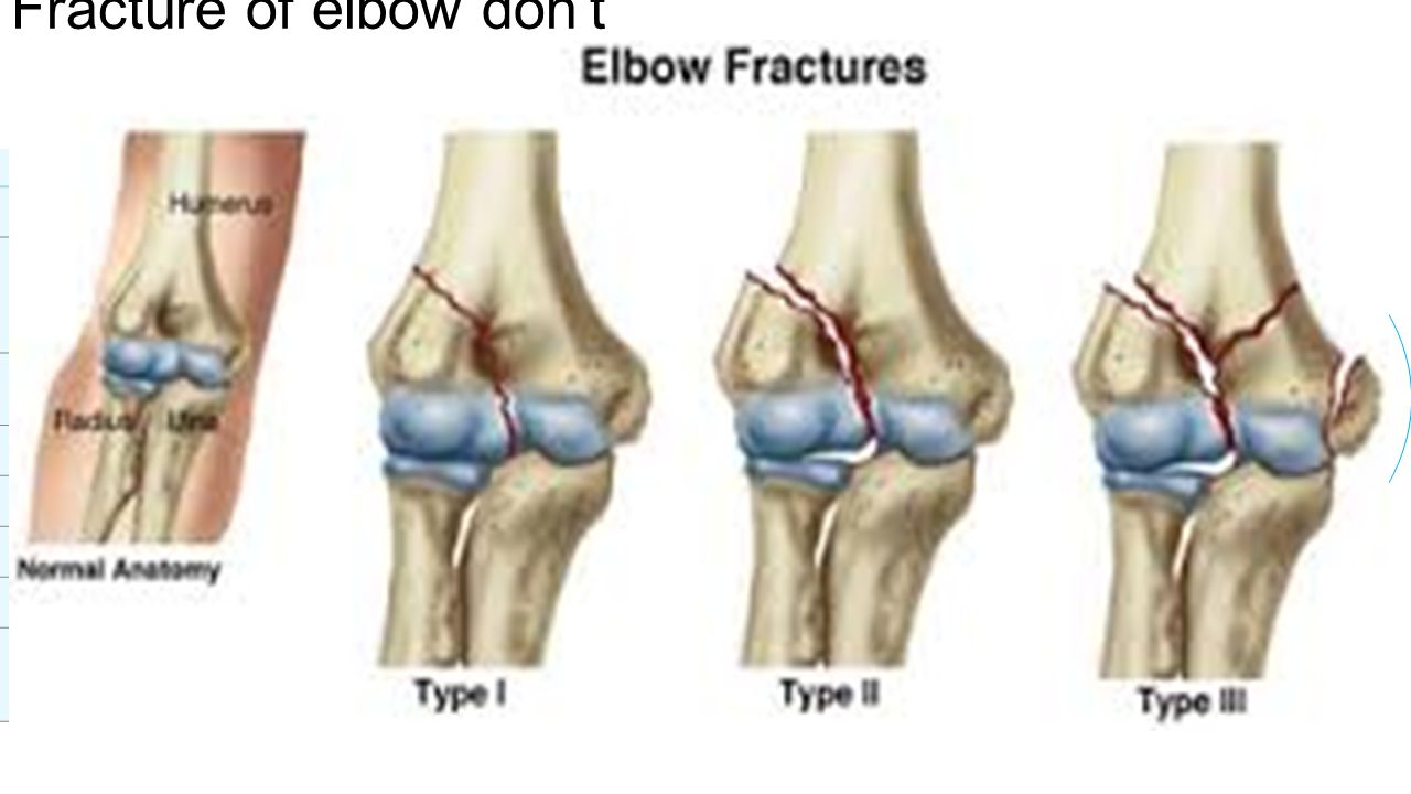 Golfer\'s elbow *tennis elbow*. Definition Golfer\'s elbow is a ...