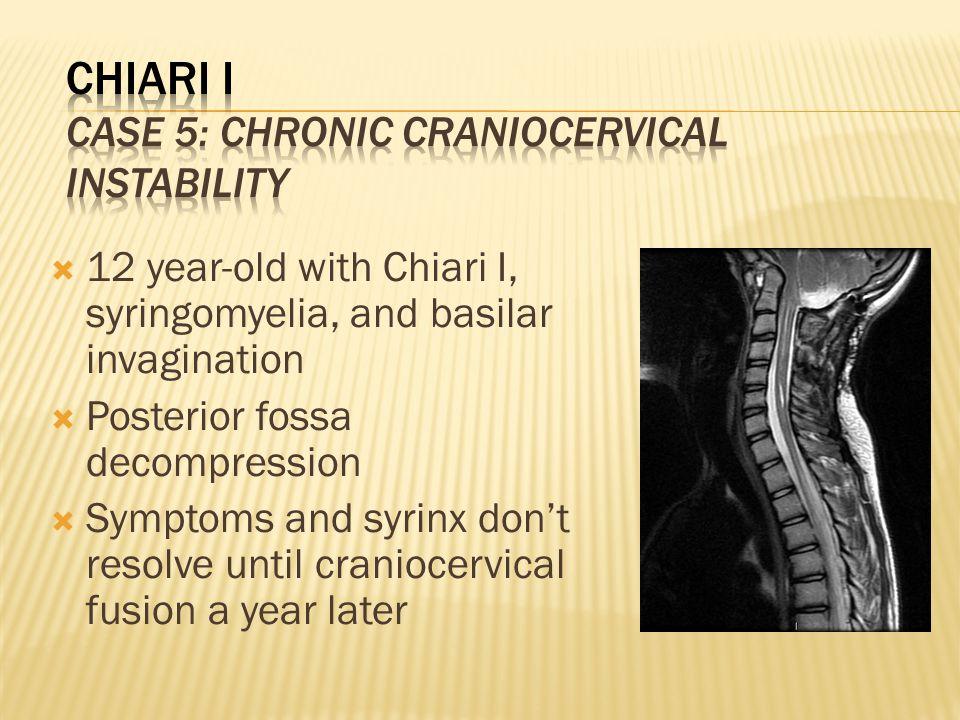 10  12 year-old with Chiari I, syringomyelia, and basilar invagination   Posterior fossa decompression  Symptoms and syrinx don't resolve until ...
