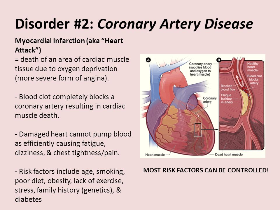 Circulatory Disorders Technologies Disorders 1hypertension 2