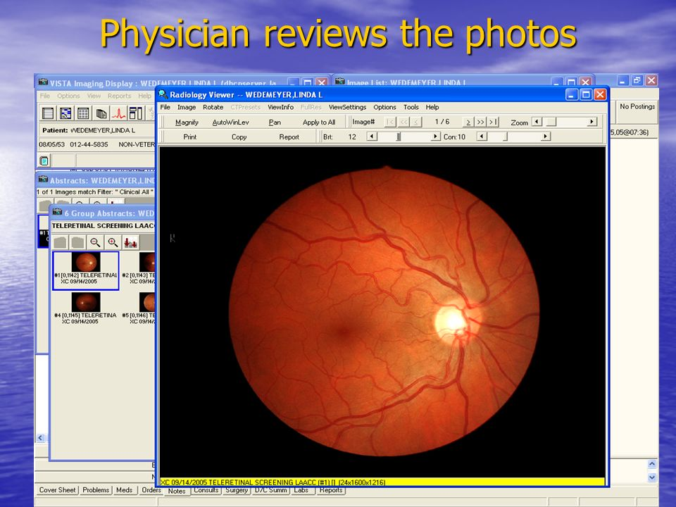 Physician reviews the photos