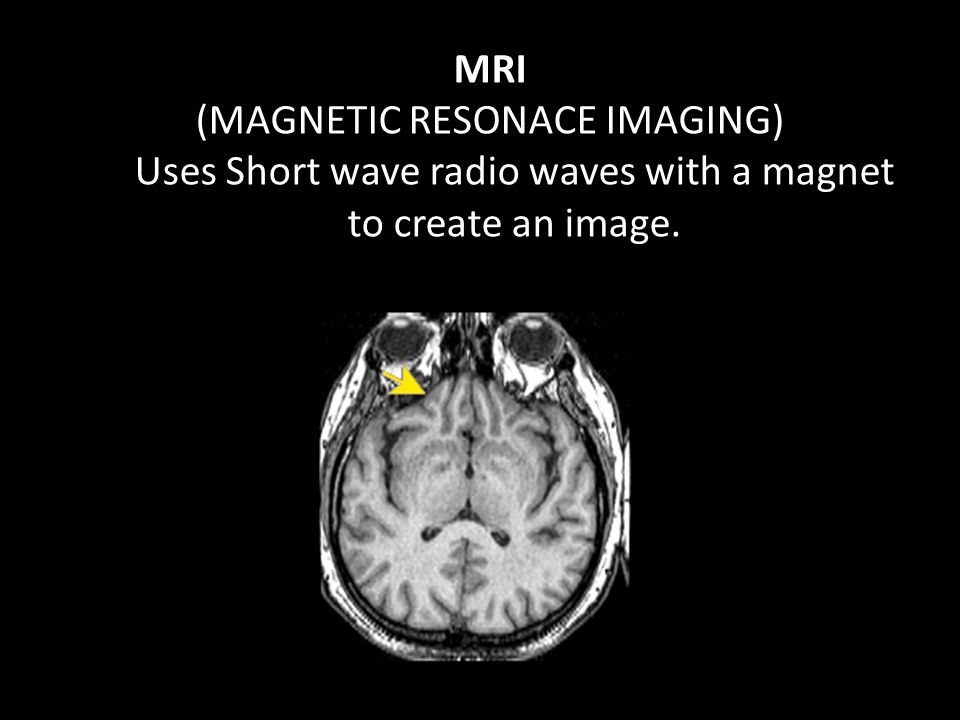 MRI (MAGNETIC RESONACE IMAGING) Uses Short wave radio waves with a magnet to create an image.