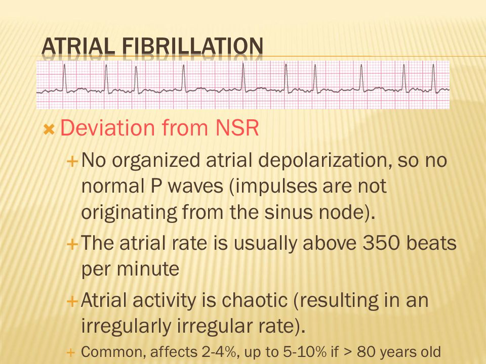  Deviation from NSR  No organized atrial depolarization, so no normal P waves (impulses are not originating from the sinus node).